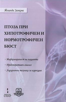 Птоза при хипотрофичен и нормотрофичен бюст