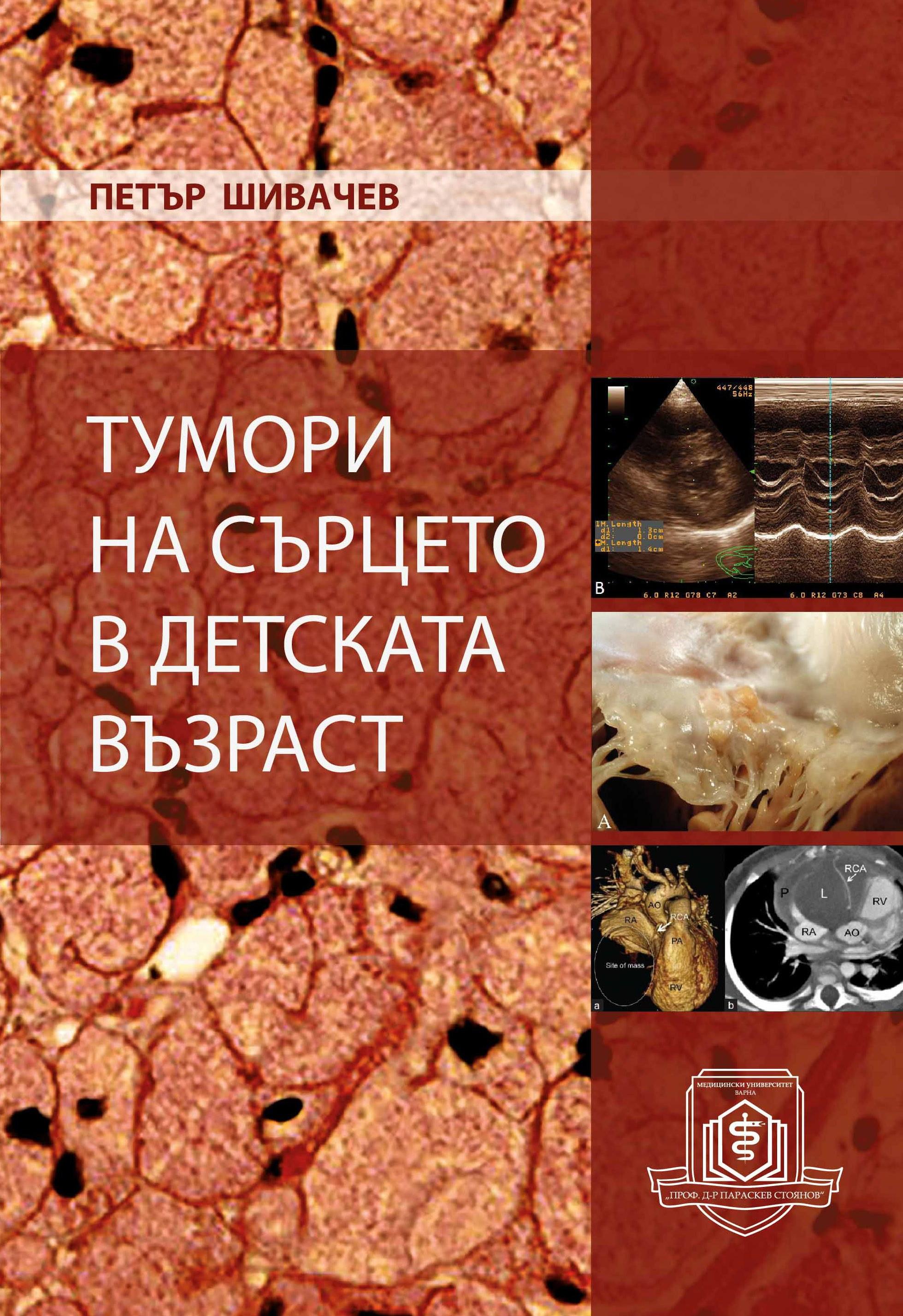 Тумори на сърцето в детската възраст