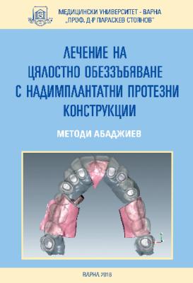 Лечение на цялостно обеззъбяване с надимплантатни протезни конструкции