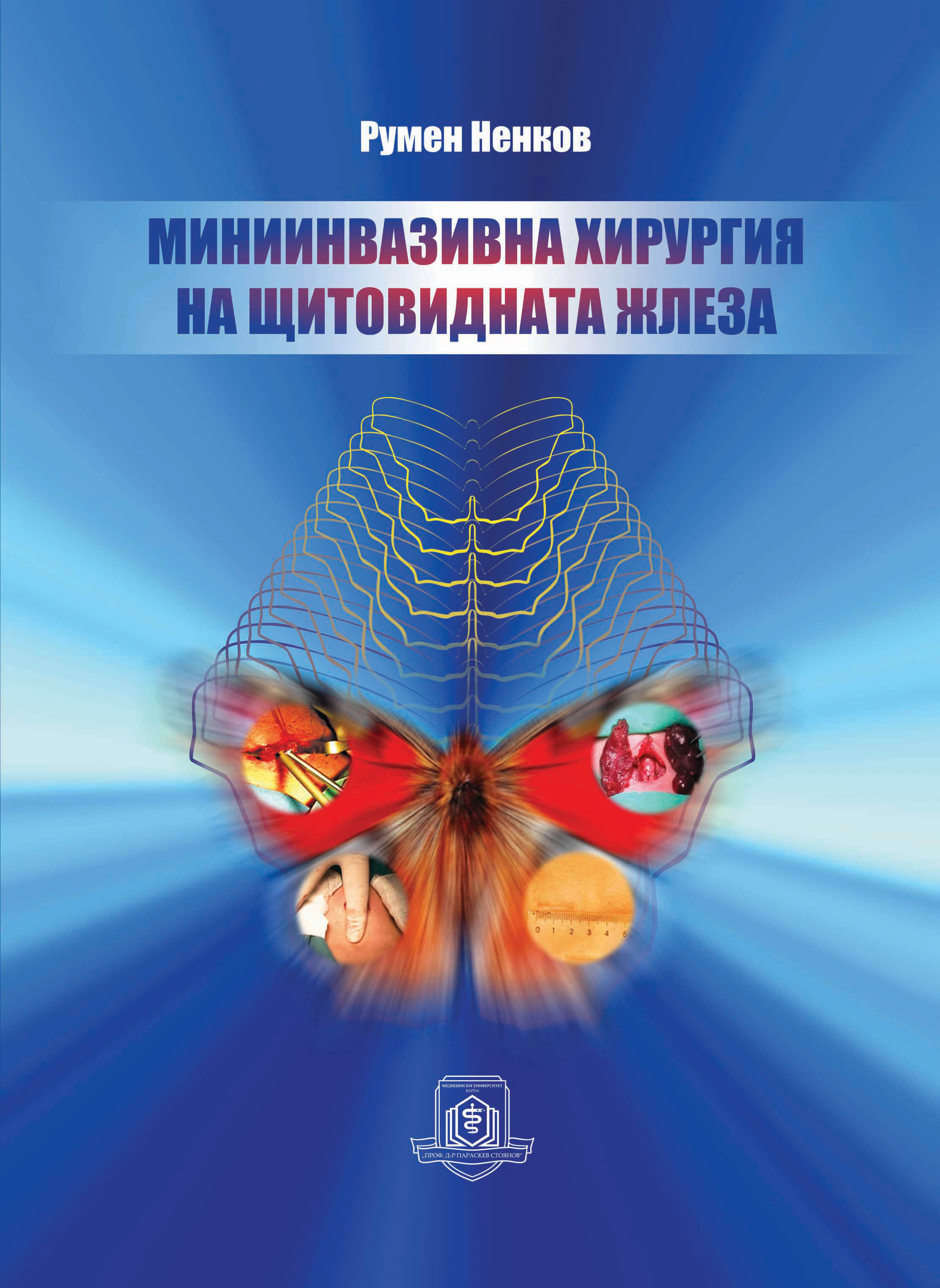 Varna Medical University Press Has Published the Monograph Mini-Invasive Surgery of the Thyroid Gland