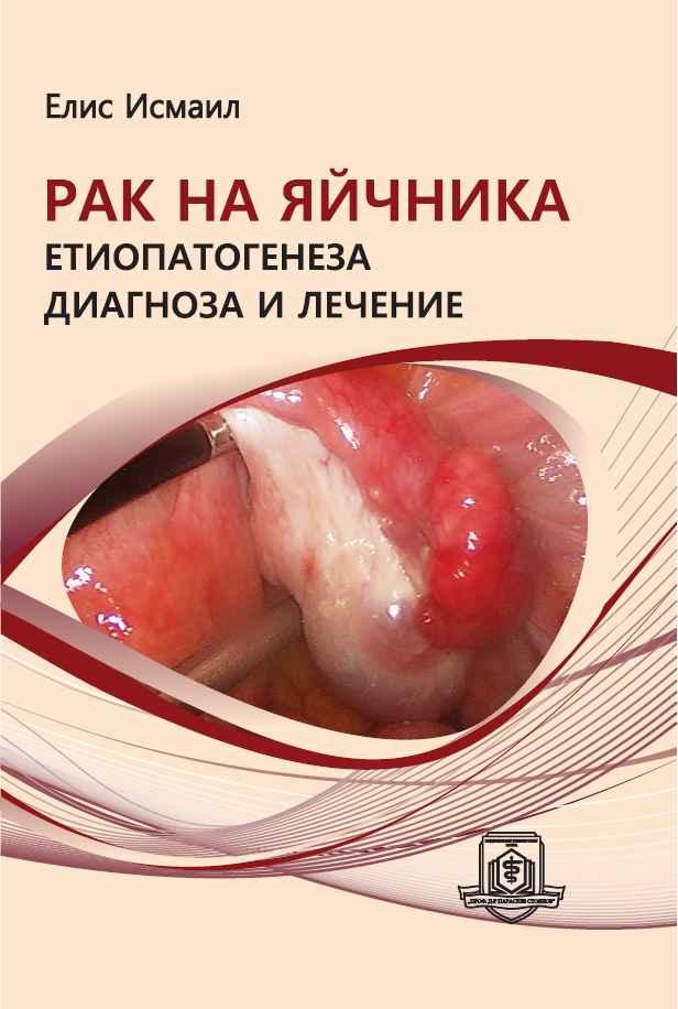 "The Monograph ""Ovarian Cancer. Ethiopathogenesis, Diagnosis and Treatment"" Has Been Printed"