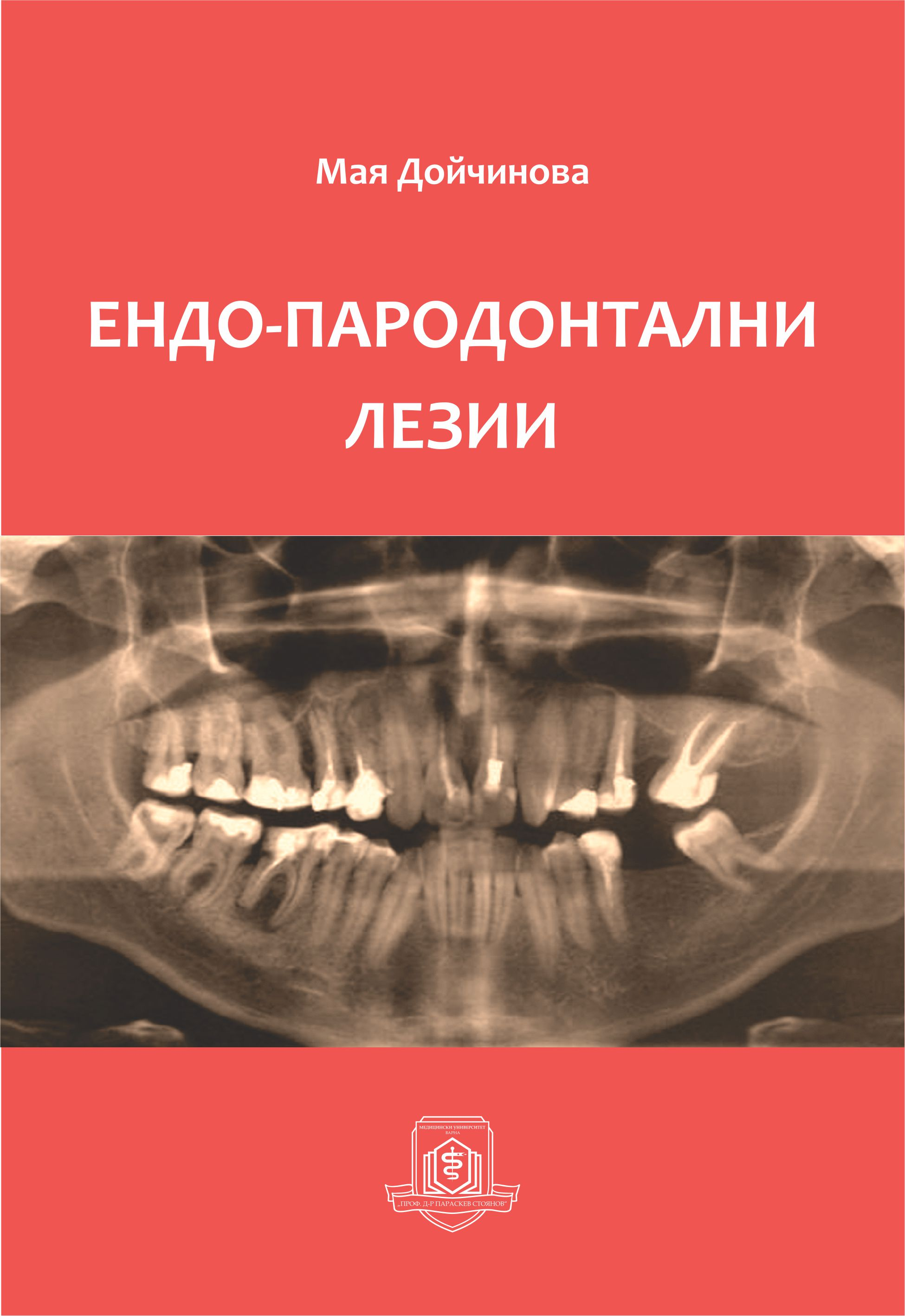 """Endo-Periodontal Lesions"" a Monograph of Maya Doychinova Has Been Published"